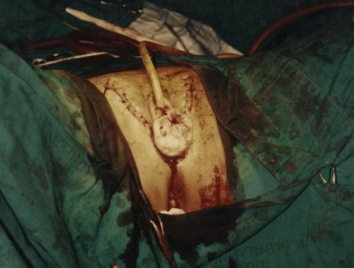 Operasi Mengganti Kelamin